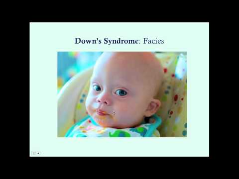 Downs Syndrome - CRASH! Medical Review Series