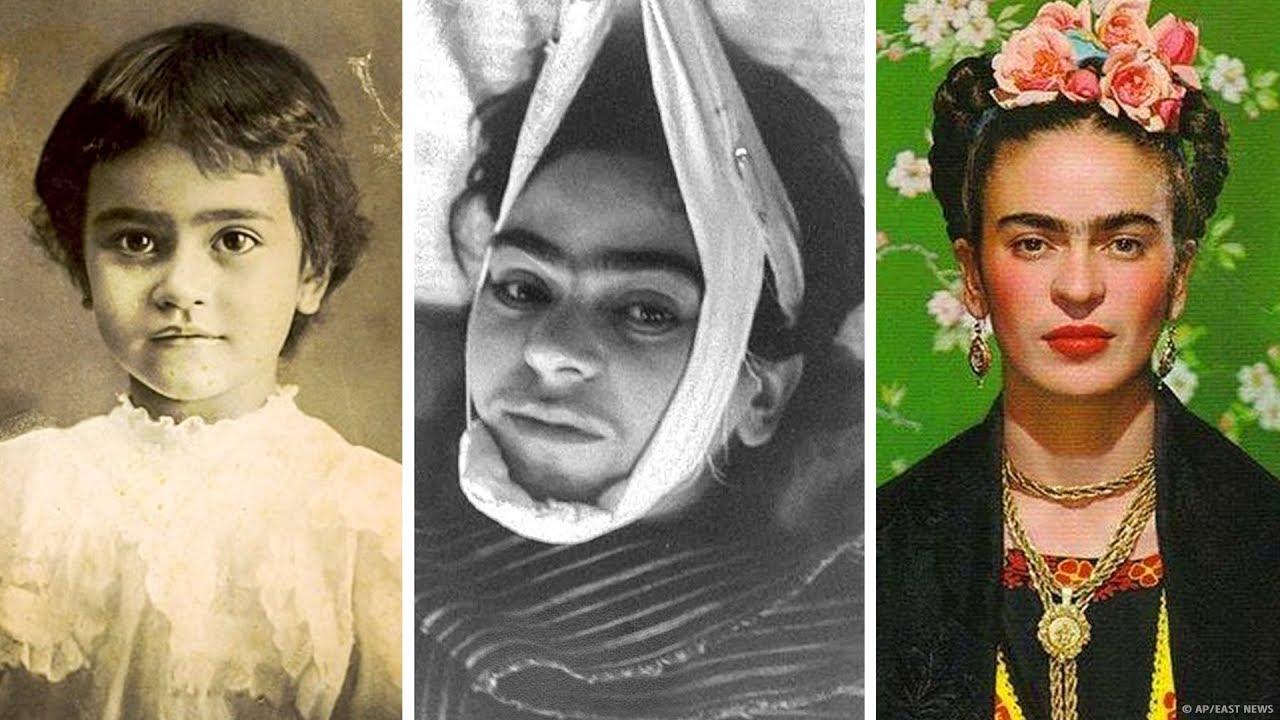 Трагическая история Фриды Кало