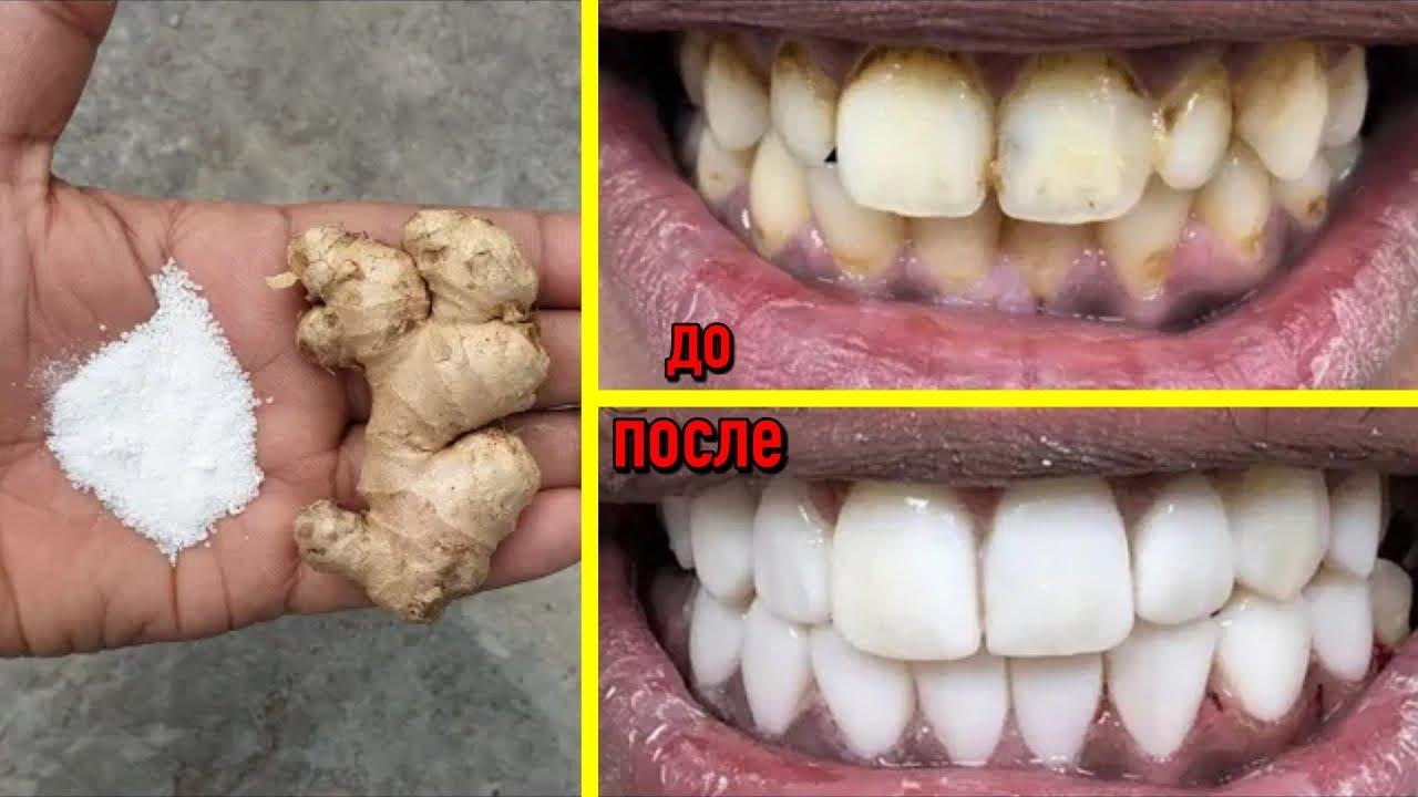 Отбеливание зубов всего за две минуты | Белые и блестящие зубы в домашних условиях