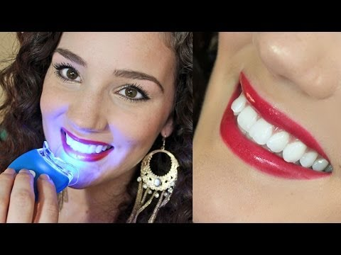 Affordable Effective Teeth Whitening - Smile Bright Review