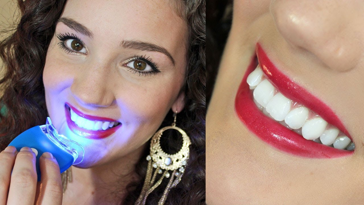 Affordable Effective Teeth Whitening  Smile Bright Review
