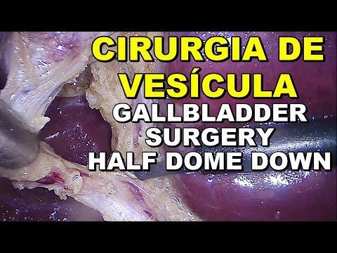 Cirurgia de Colecistectomia por Vídeo por Lama Biliar - com áudio - FullHD + 2 GoPro