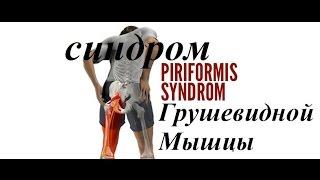 видео Синдром грушевидной мышцы (миофасциальный синдром грушевидной мышцы)