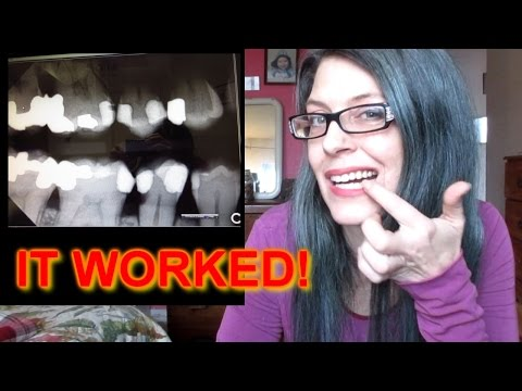 HOW I AVOIDED 3 ROOT CANALS NATURALLY - DENTISTS HATE THIS VIDEO! pt 2