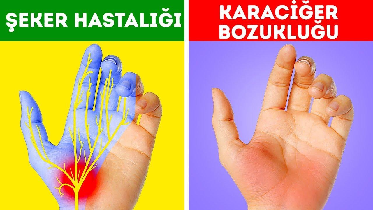 Ellerden anlaşılan sağlık sorunları
