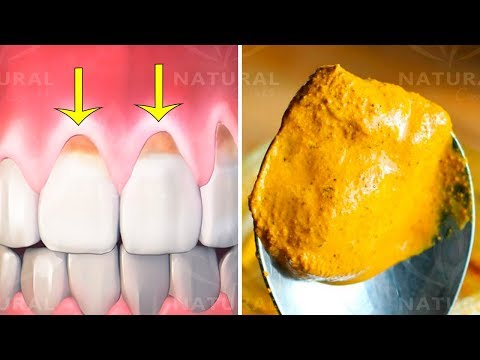 Why Turmeric is Fantastic for Oral Health and Hygiene