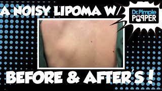 A Noisy Lipoma with Before and After Pics