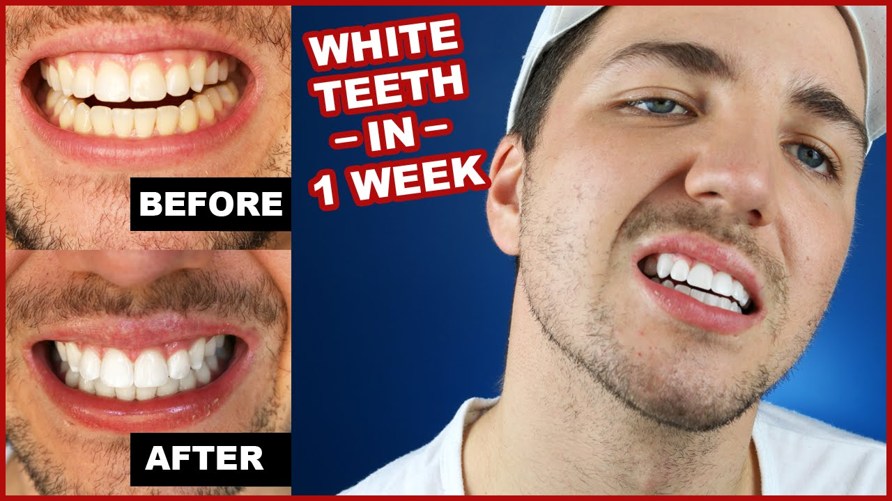 How To Get White Teeth In 1 Week Smile Brilliant Youtube