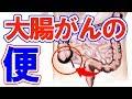 【今すぐ確認】大腸がんの便はココが違う!毎年6万人の日本人が発症する身近な病!