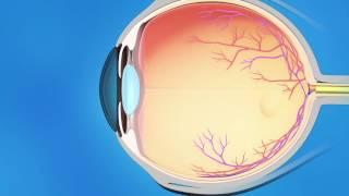 Laser Iridotomy for Glaucoma