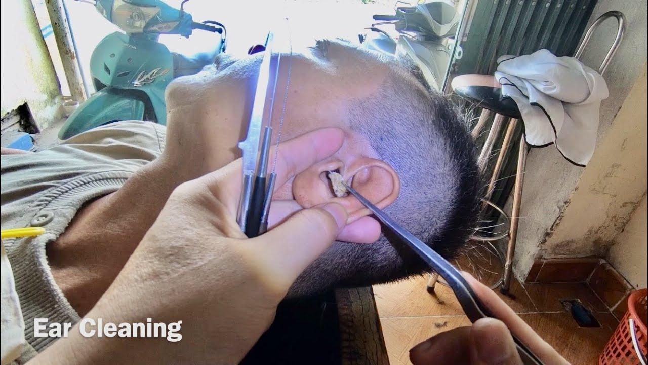 耳掃除 귀 청소 Ear Cleaning #242