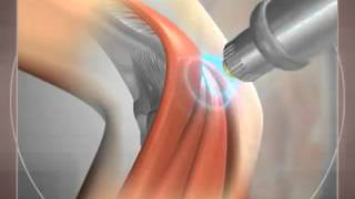 Лечение артроза локтевого сустава. Ударно-волновая терапия (УВТ)(Техника лечения артроза локтевого сустава с помощью ударно-волновой терапии (УВТ). Безоперационный метод., 2014-08-30T12:09:42.000Z)