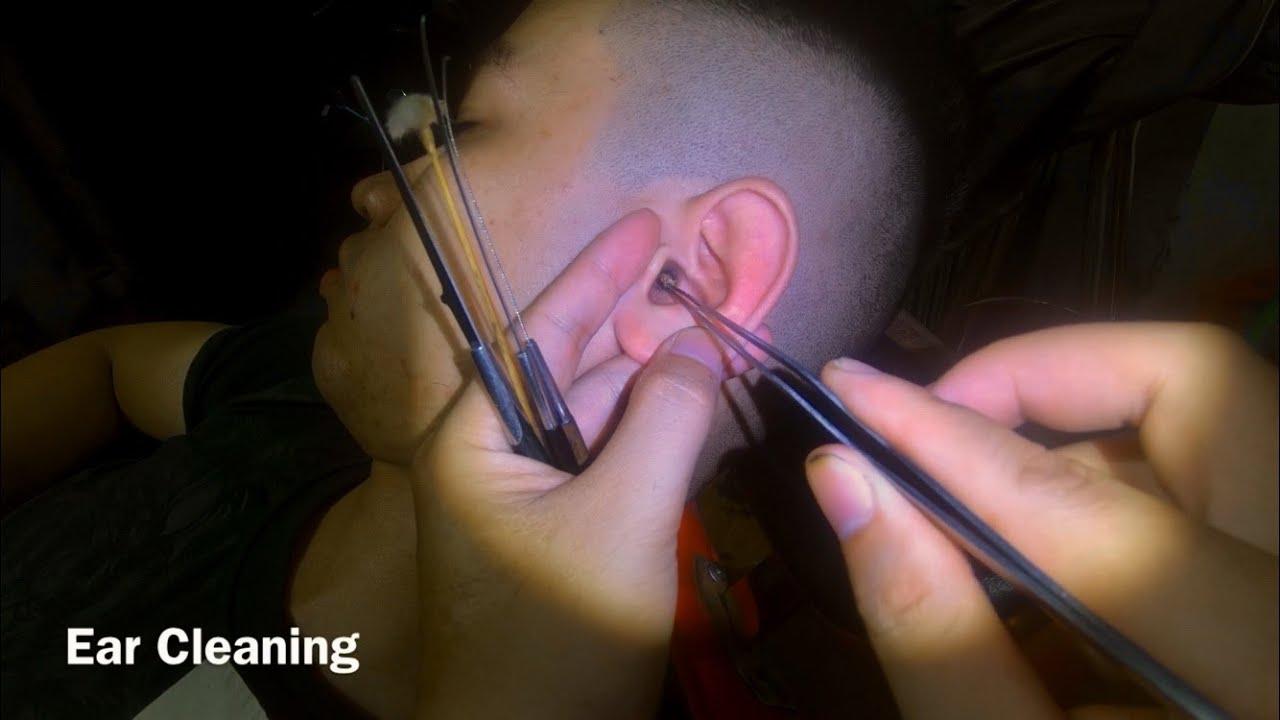 耳掃除 귀 청소 Ear Cleaning #221