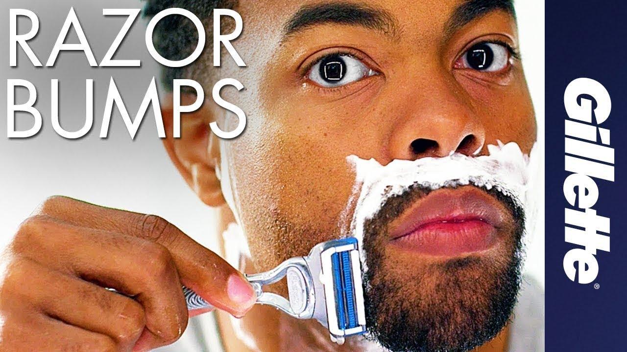 Bumps razor How to