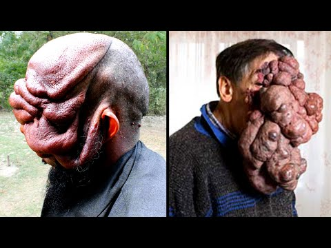 People with Extraordinarily Rare Body Parts