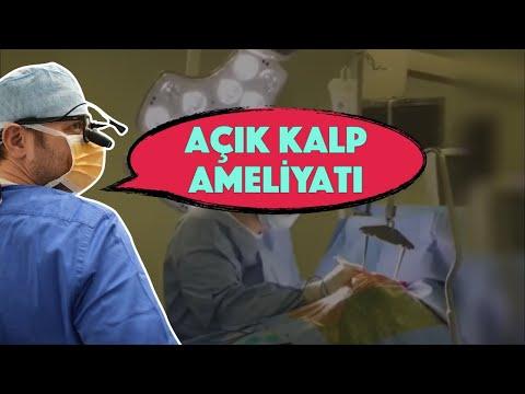 Bir Açık Kalp Ameliyatı - Koroner Baypas | DrYerebakan