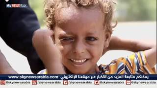 ميليشيات الانقلاب تتاجر بطعام الجياع في اليمن