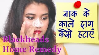 Home Remedy for Blackheads in Hindi