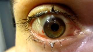 My Eye The Day After Lasik Vision Correction Surgery (Warning! - Gross Eyelashes)