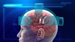Depression treatment: Electromagnetic helmet breakthrough developed in Denmark