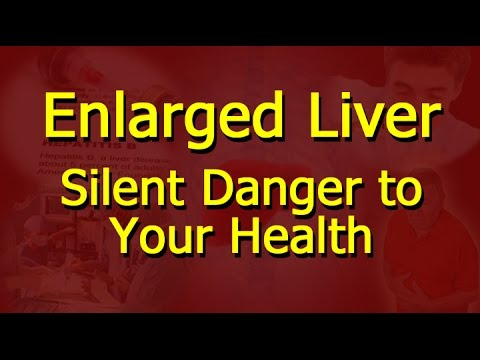 enlarged liver - silent danger to your health - youtube, Skeleton