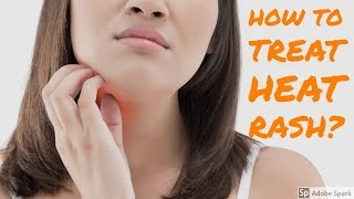 How to treat heat rash/miliaria at home?|Summer special