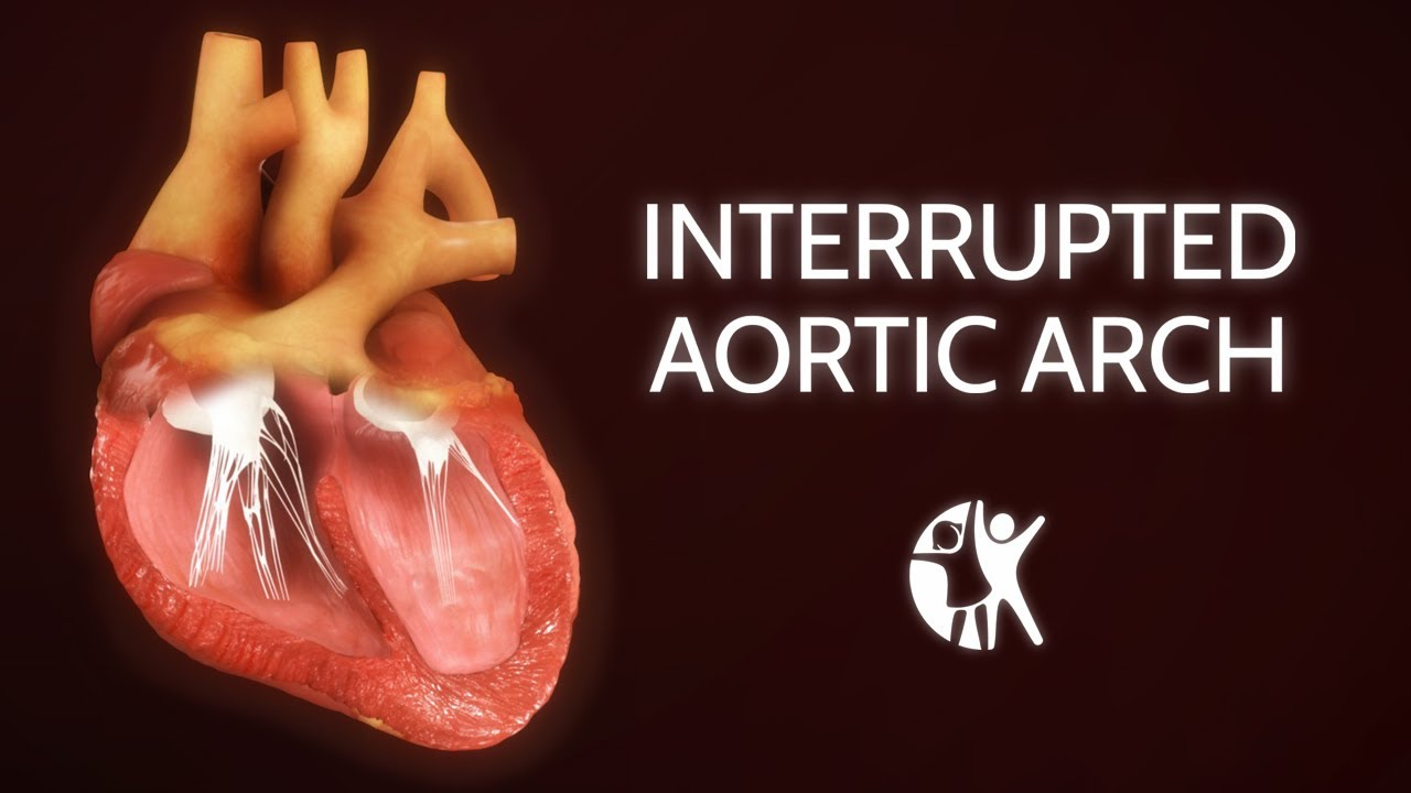 Interrupted Aortic Arch − Ventricular Septic Defect - YouTube