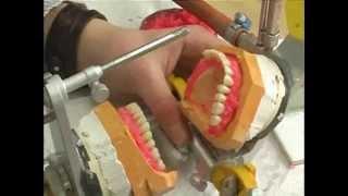 Расстановка по воску(Расстановку по воску часто называют расстановкой зубов, это определенный рабочий момент в ходе изготовлен..., 2013-11-26T00:13:53.000Z)