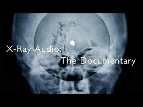 X-Ray Audio: The Documentary