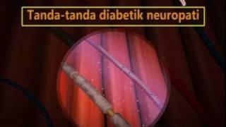 Begini Bedakan Kesemutan Biasa dengan Gangguan Neuropati.