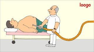 Fettabsaugen