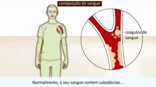 Risco enfermagem formação em trombos fatores de de diagnóstico para de