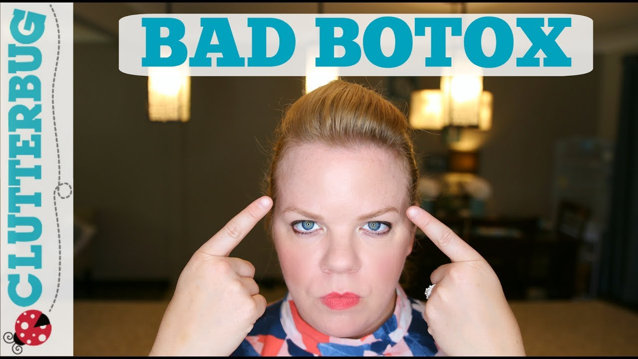 My Bad Botox Experience