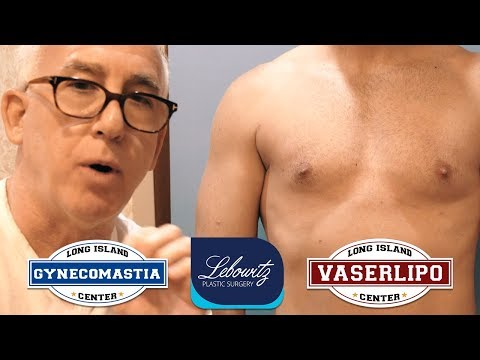 Male Breast/Gynecomastia Revision Hi-Def Vaser Liposculpture Surgery, Long Island NY By Dr Lebowitz