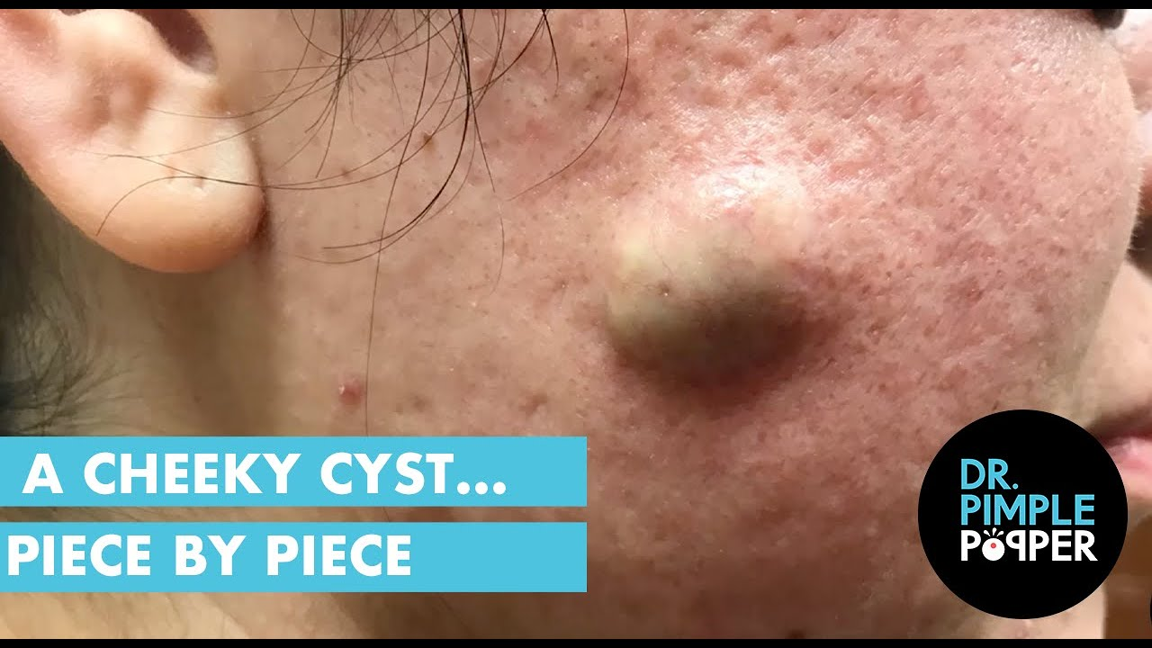 Dr  Pimple Popper Pops a 'Cheeky' Cyst in New YouTube Video