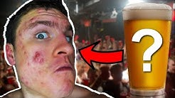 hqdefault - Alcohol On Acne Yahoo Answers