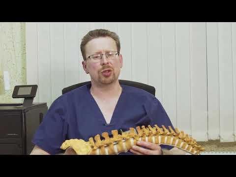Как лечить артроз позвоночника