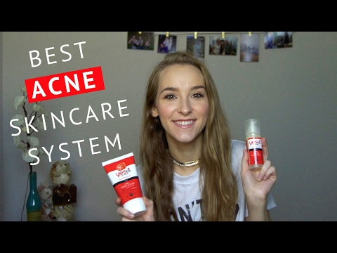 BEST SKINCARE SYSTEM FOR ACNE! | Olivia Haymond