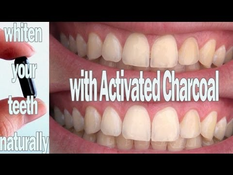 Diy Solutions Whiten Your Teeth With Activated Charcoal Youtube