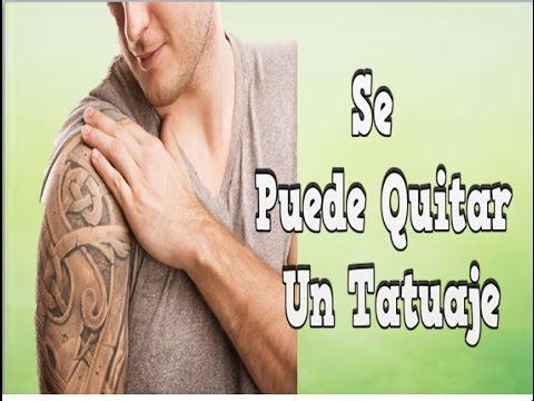 Se Puede Quitar Un Tatuaje Eliminacion De Tatuajes Sin Laser