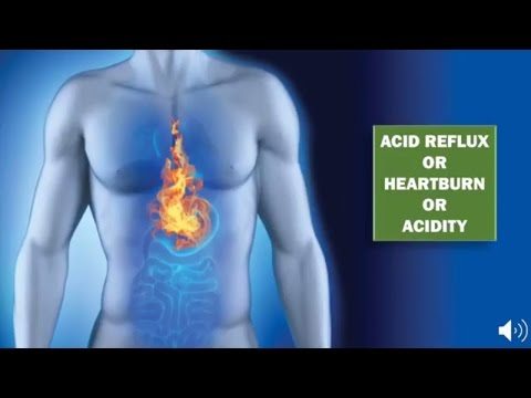Get Rid Of Heartburn And Acid Reflux With This Homemade Reme