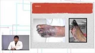 Inferiores extremidades de periférica enfermedad vascular bilateral las