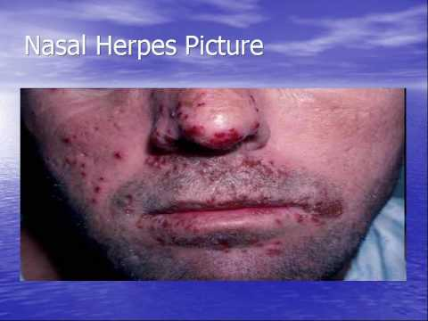 Herpes facial and genital concurrently