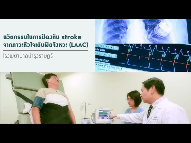 นวัตกรรมในการป้องกันจากภาวะหัวใจเต้นผิดจังหวะ (LAAC)