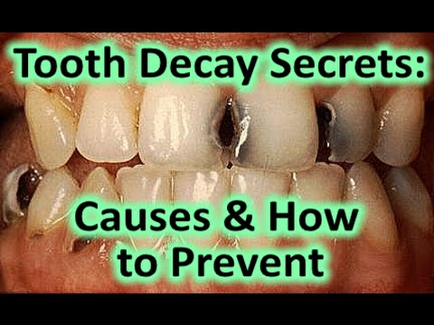 How to Prevent Tooth Decay Naturally & What Causes Tooth Decay * Stop Cavities