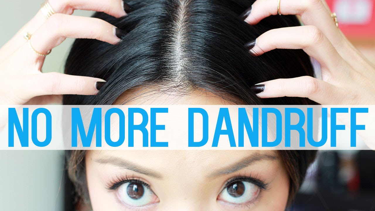 How To Get Rid Of Dandruff Youtube