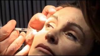 Injections de botox & acide hyaluronique ant-rides, cabinet de médecine esthétique à Paris