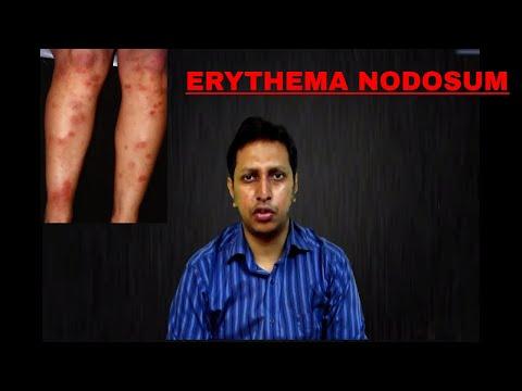 Erythema Nodosum: Important Points, causes , symptoms , investigations , treatment