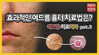 [피부과 전문의] 피부과 여드름 흉터 치료 레이저의 최…