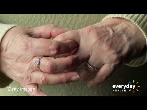 5 Tips for Exercising With Rheumatoid Arthritis